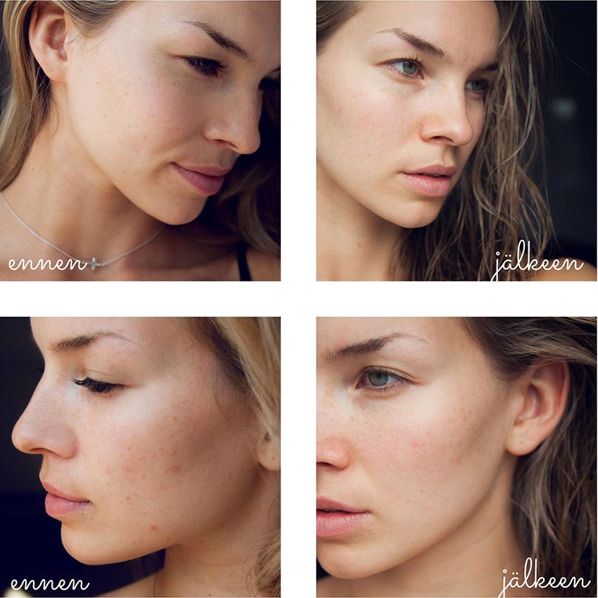 iho muutoksetc